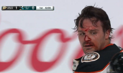 Sam Carrick Bloodied in Fight With Jeffrey Viel